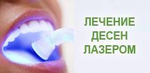 Лечение десен лазером